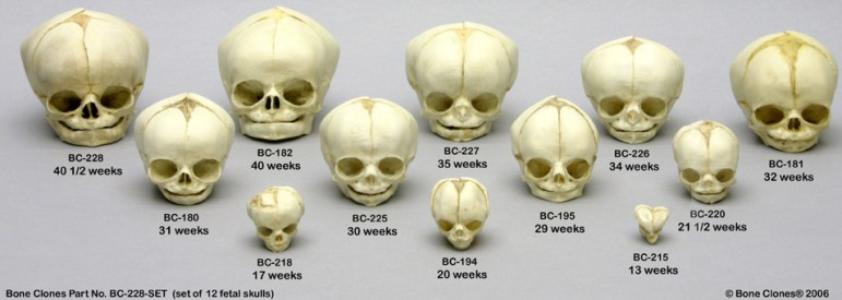 fetal_skull_(set_of_12_ages_13_to_40_5_weeks)-www_boneclones_com