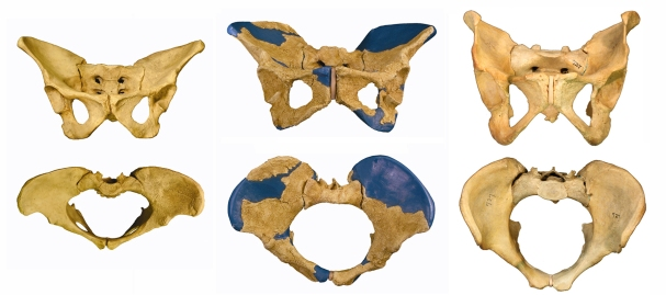 "Left: ""Lucy"" Australopithecus afarensis 3.2 mya; H. erectus female ""Gona"" 1.2 mya; modern H. sapins female."