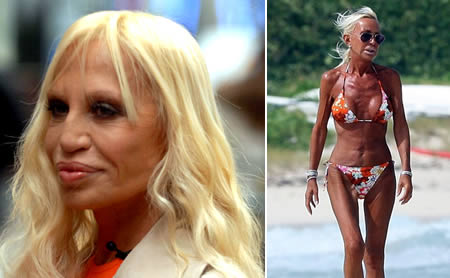10-worst-plastic-surgery-disasters7