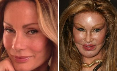 20-worst-cases-of-celebrity-plastic-surgery-gone-wrong-4