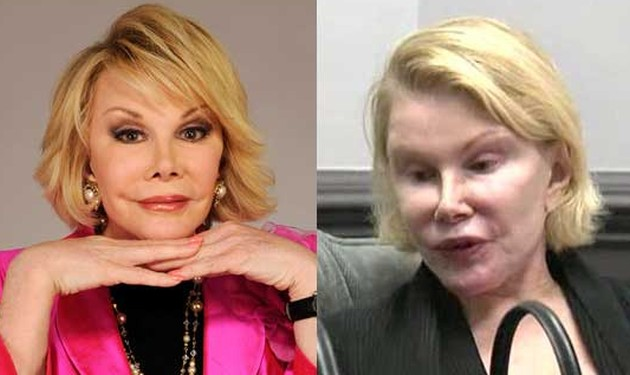 Joan-Rivers-worst-plastic-surgery-pictures