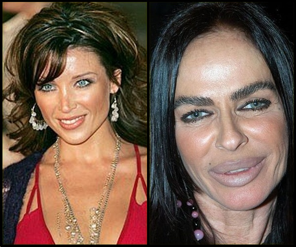 michaela-romanini-plastic-surgery-before-and-after