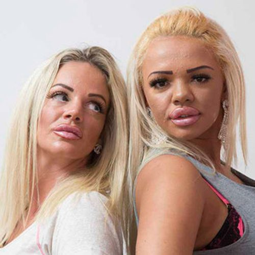 rs_300x300-150827105014-600_2NEWSDOG_Plastic_Surgery_Mum_Daughter-katie-price_ls_82715